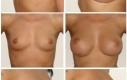 Età: 22 Misura della protesi: 330 cc  Tipo di protesi: Mentor, gel coesivo  Posizionamento: davanti il muscolo