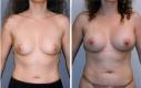 10 mesi post-OP Età: 42 Misura della protesi: D 370 cc/S 350 cc  Tipo di protesi: Protesi anatomiche Posizionamento: Retromuscolare  Incisione: solco sottomammario