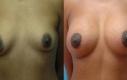 Intervento: Lifting seno con aumento 5 mesi post-OP Età: 34 Misura protesi: H 480 cc/V 450 cc  Tipo protesi: Tondo di soluzione salina, profilo medio Posizionamento: Retromuscolare Incisione: sul bordo dell'areola Incisione: terza-quarta