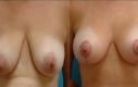 Intervento: Lifting seno con aumento 4 mesi post-OP Età: 40 Misura protesi: H 370 cc/V 325 cc  Tipo protesi: Tondo di soluzione salina, profilo medio Posizionamento: Retromuscolare Incisione: ad ancora