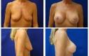 Lifting seno, donna 50, in combinazione con protesi di silicone. Cambiamenti di misura seconda-quarta