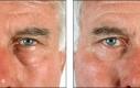 I depositi di grasso dalle palpebre inferiori sono stati rimossi. Quando si parla di borse sotto agli occhi sono normalmente depositi di grassi.