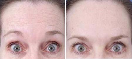 Glicerina di maschera e vitamina E per la persona di video