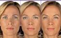 """Trattamento di Botox. I modelli """"chiudono"""" il viso in una smorfia in tutte le immagini."""