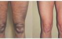 Body-jet liposuzione delle coscia ha in questo caso diminuito sia le cellulite che ha dato un contorno definito.