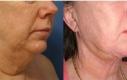 Qui una donna 64 anni che ha eseguito una liposuzione del tipo laser in combinazione con un trattamento Thermage a seguire.
