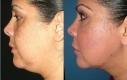 Donna 42 anni che voleva trattare il doppio mento e definire la linea della macella. Il grasso veniva rimosso con il lipolaser e il trattamento veniva seguito da una seduta Thermage per rassodare la pelle.