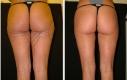 Donna 31 anni 6 settimane dopo la liposuzione dell'interno ed esterno coscia e ginocchia.