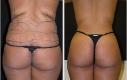 Qui una donna, 24 anni, che dopo una gravidanza soffriva di smagliature e volevo riprendere le sue forme. La liposuzione è stata eseguita nelle zone marcate. Le foto sono scattate 6 settimane post-OP.