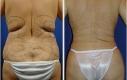 Donna 41 anni che dopo gravidanze ripetute desiderava di migliorare l'addome, la vita e schiena. La liposuzione è stata eseguita nelle zone marcate. Le foto sono scattate 6 settimane post-OP.