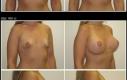 Intervento: Lifting del seno con aumento Età: 25  Misura di protesi: 450 cc  Tipo di protesi: Protesi tonde, superficie liscia, profilo moderato, gel memory coesivo Posizionamento: Sottomuscolare Incisione- Intorno ai capezzoli  Cambiamento di misura: prima-terza