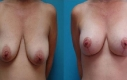 Intervento: Lifting del seno con aumento 2 mesi post-OP Età: 35  Misura di protesi: D 325 cc/ S 375 cc Tipo di protesi: Protesi tonde coesive, profilo moderato Posizionamento: Sottomuscolare Incisione: Intorno ai capezzoli  Cambiamento di misura: terza-quarta