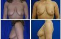 Lifting seno donna 39 anni. Le foto postoperatorie sono scattate 4 anni dopo l'intervento.
