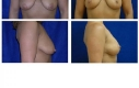 Lifting seno donna 44 anni. Le foto postoperatorie sono scattate 4 anni dopo l'intervento.
