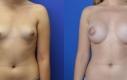 Aumento del seno con incisione intorno al capezzolo. Posizionamento retromuscolare con protesi tonde con superficie liscia, profilo medio. Misura dalla prima alla terza.