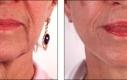 La pelle del collo e la macella è stata rassodata e l'eccesso è stato rimosso. Nota bene come l'intervento influenza sulla valutazione di età tra le due immagini.