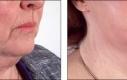 Un lifting del viso include solitamente anche la parte bassa del viso ed il collo. Della parte del collo si può ottenere cambiamenti notevoli con l'esportazione dei grassi e riposizionamento del tessuto. L'immagine è un buon esempio di questo.