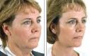 Un esempio di un volto, senza tante rughe, dove il sollevamento dei tessuti sottostanti sta per la differenza estetica.