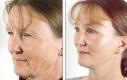 """Lifting del viso in combinazione con blefaroplastica superiore, un cosiddetto intervento """"full-face""""."""