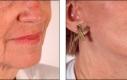 Un candidato in ottime condizioni per un buon risultato di un lifting del viso. L'intervento solleva in modo efficace e mostra il collo lungo e snello e rassoda il mento e la linea della macella tramite stiramento e rimozione della pelle in eccesso.