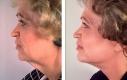 Esempio di un lifting del viso che ha ridato al paziente il collo e la linea della macella.