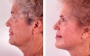 Esempio di un lifting del viso in combinazione con un peeling profondo. Con il lifting si è ottenuto un effetto stirato della pelle, collo e linea della macella e tramite il peeling si sono ridotte le piccole rughe della pelle.
