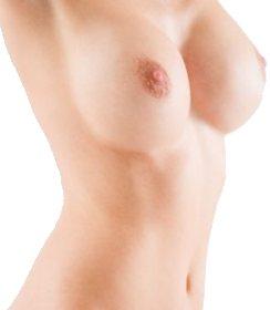 Aumento del seno (mastoplastica additiva)