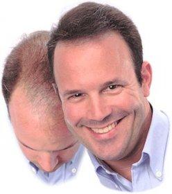 Tutto sul trapianto di capelli