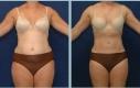 Bodyjet liposuzione dalle zone tradizionali pancia, vita e cosce.