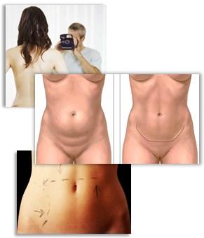 distribuzione del peso dopo addominoplastica